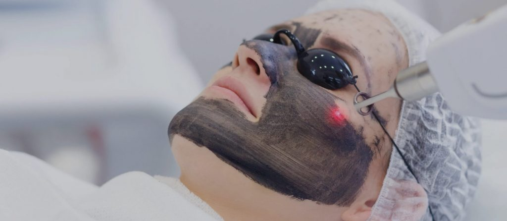 Laser Peel Image