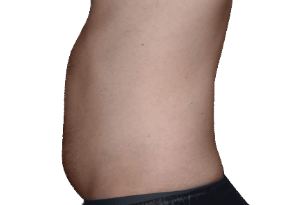 belly-fat-before